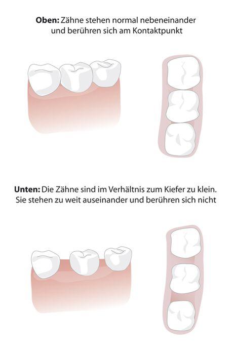 Zwischen den schneidezähnen grosse zahnlücke Zahnlücke mit