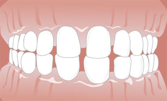 Tun zahnlücke vorne gegen was Zahn wackelt: