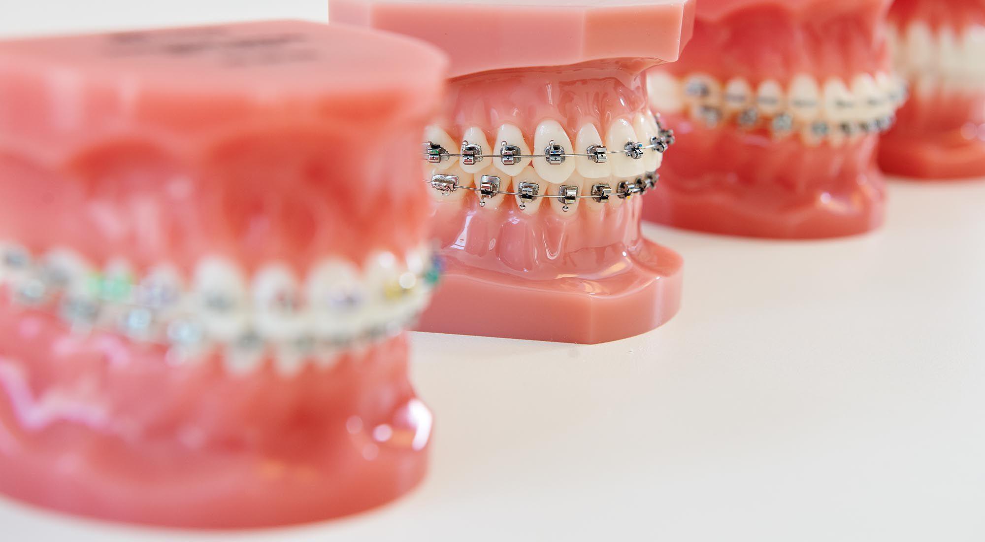 Zahnspange außenbogen Die lose